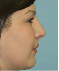 Closed Rhinoplasty after 214429