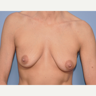 45-54 year old woman treated with Breast Implants before 3234448