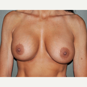 45-54 year old woman treated with Breast Implants after 3234448