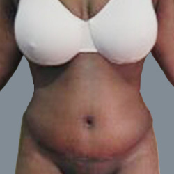 Tummy Tuck with  Liposuction after 2838265