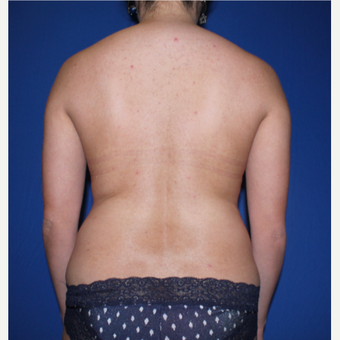 35-44 year old woman treated with Liposuction before 3769761