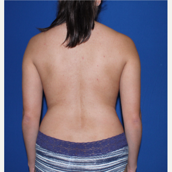 35-44 year old woman treated with Liposuction after 3769761