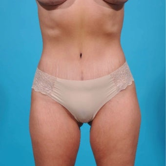 35-44 year old woman treated with Mini Tummy Tuck after 2643720