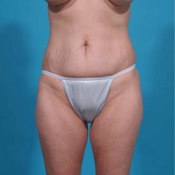 35-44 year old woman treated with Mini Tummy Tuck before 2643720
