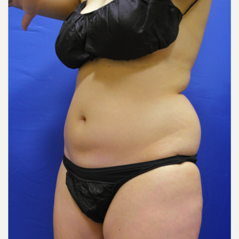 25-34 year old woman treated with Liposuction before 3366069
