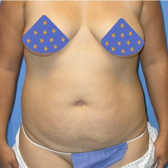 Liposuction of entire trunk 662267