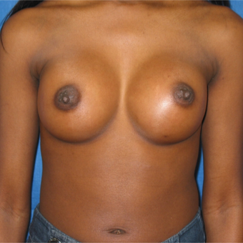 Breast augmentation on petite 5'1 97 pound patient after 3036432