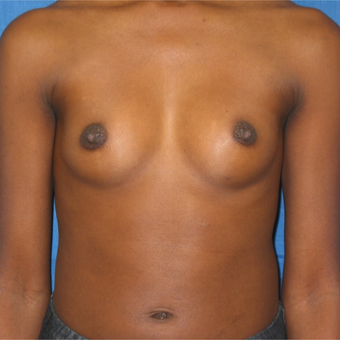 Breast augmentation on petite 5'1 97 pound patient before 3036432