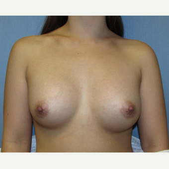 23 year old patient - Bilateral Breast Augmentation after 3010788