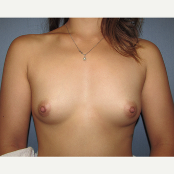 23 year old patient - Bilateral Breast Augmentation before 3010788