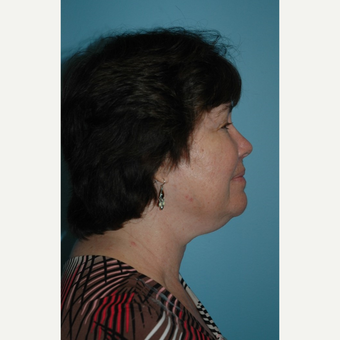 65-74 year old woman treated with Kybella before 2706490