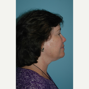 65-74 year old woman treated with Kybella after 2706490