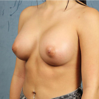 Mentor Breast Implants after 3033668
