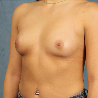 Mentor Breast Implants before 3033668