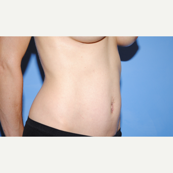 25-34 year old woman treated with Tummy Tuck after 3763357