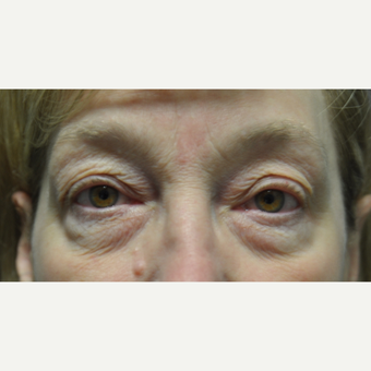 55-64 year old woman treated with Eye Bags Treatment before 3665141