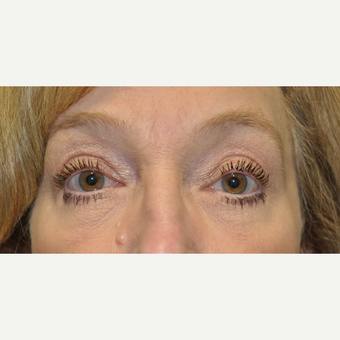 55-64 year old woman treated with Eye Bags Treatment after 3665141