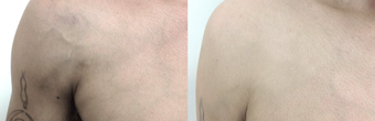 37-year-old man treated with Sclerotherapy for protruding chest veins before 2836135