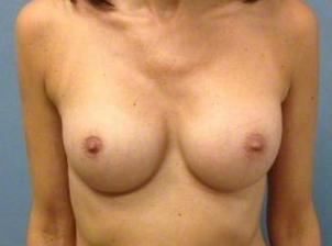 35-44 year old woman treated with Breast Augmentation
