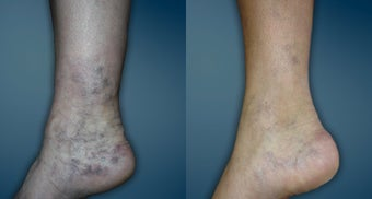 Sclerotherapy of spider veins around the ankle before 1243016