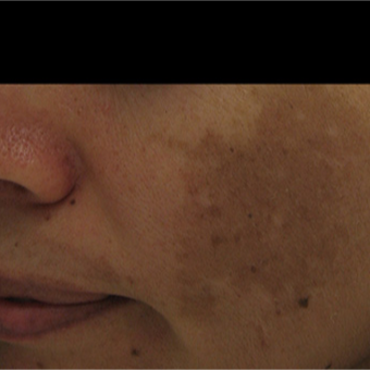 35-44 year old woman treated with Laser Genesis before 2967583