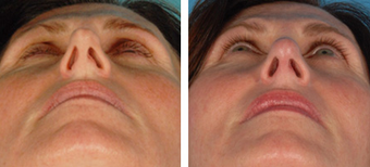 Functional Rhinoplasty before 1208303