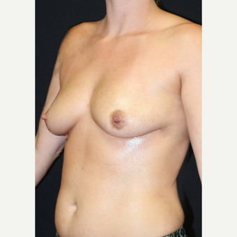 30 year old woman treated with Mentor Breast Implants before 2742034