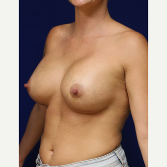 30 year old woman treated with Mentor Breast Implants after 2742034