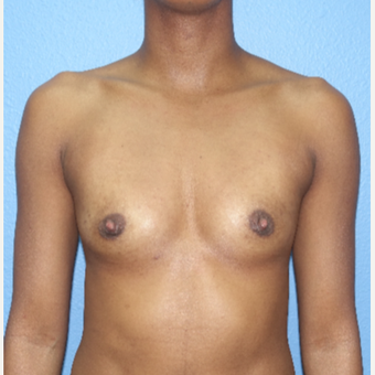 25-34 year old woman treated with Breast Augmentation before 3104666