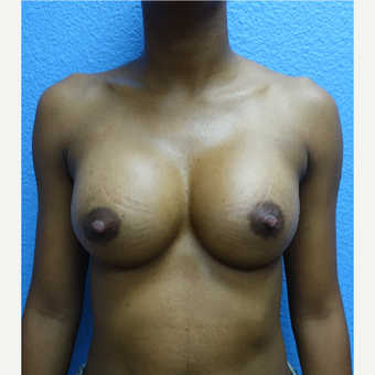 25-34 year old woman treated with Breast Augmentation after 3104666