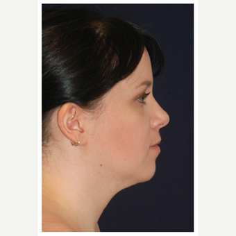 25-34 year old woman treated with Chin Liposuction before 3174962