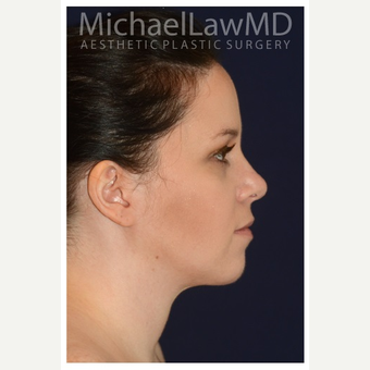 25-34 year old woman treated with Chin Liposuction after 3174962