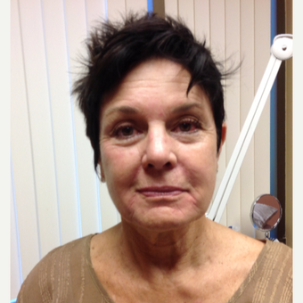 65-74 year old woman treated with Botox before 2999279