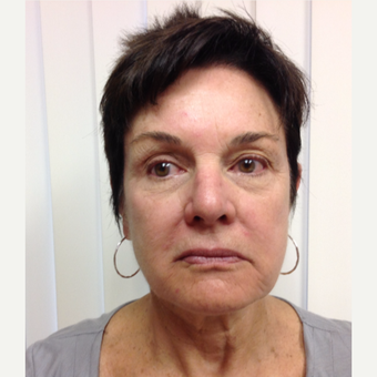65-74 year old woman treated with Botox after 2999279