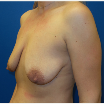 25-34 year old woman treated with Breast Lift before 3253737