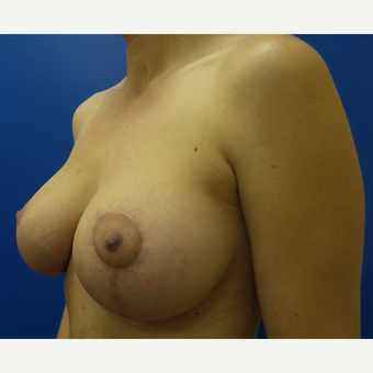 25-34 year old woman treated with Breast Lift after 3253737