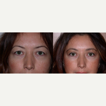 45-54 year old woman treated with Eyelid Surgery before 3602481