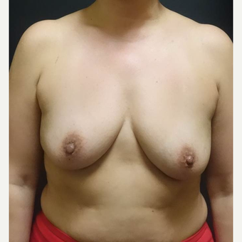 25-34 year old woman treated with Breast Augmentation before 3457926