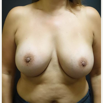 25-34 year old woman treated with Breast Augmentation after 3457926