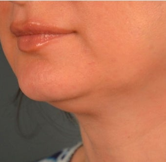 45-54 year old woman treated with Kybella 2095843