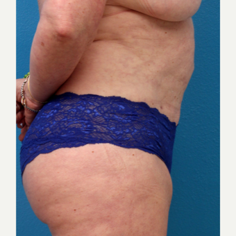 55-64 year old woman treated with Liposuction after 3340169