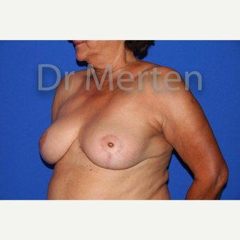 Breast Reduction after 3648499