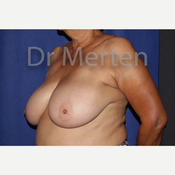 Breast Reduction before 3648499