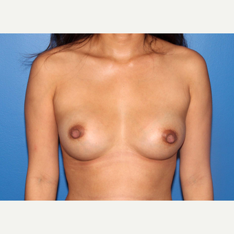35-44 year old man treated with Breast Implant Revision after 3366855