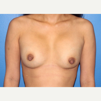 35-44 year old man treated with Breast Implant Revision before 3366855