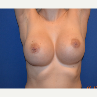 18-24 year old woman treated with Breast Implants after 3724745