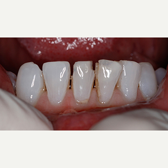 Patient treated with Dental - Composite Bonding before 3097363