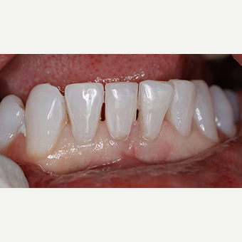 Patient treated with Dental - Composite Bonding after 3097363