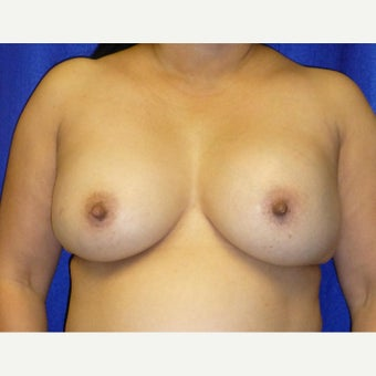 54 Year Old Female, Breast Implant Removal, No Breast Lift before 1772588