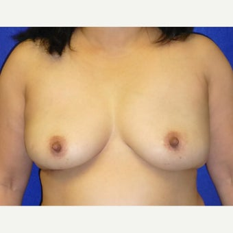 54 Year Old Female, Breast Implant Removal, No Breast Lift after 1772588
